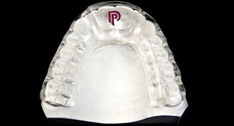 Night Mouth Guards