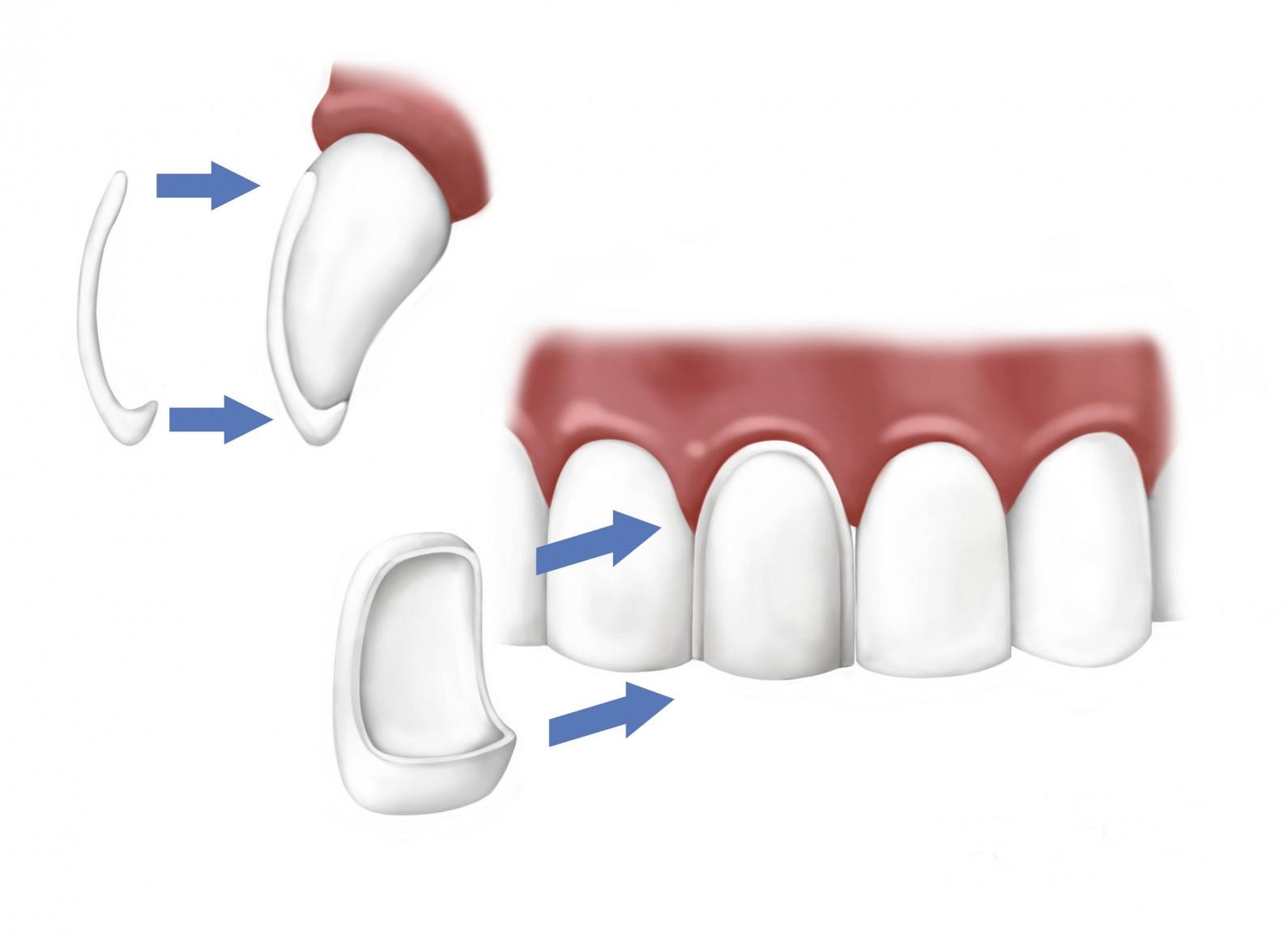Veneers   Waterloo Family Dental